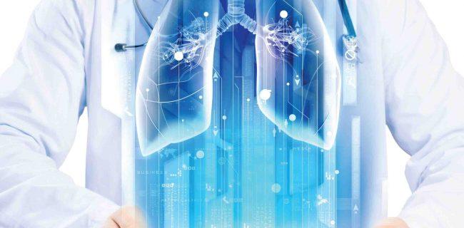 فیزیوتراپی قفسه سینه: یک کمک مهم برای بیماران کرونایی دارای تهویه مکانیکی شدید